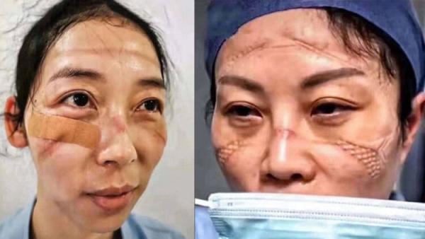 Çin'de ölümcül coronavirüsü sağlık görevlilerini de vurdu