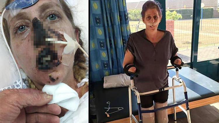 Firavun faresi tarafından ısırılan Shan Visser'in hayatı kâbusa döndü! 66 ameliyat ve ampütasyon...