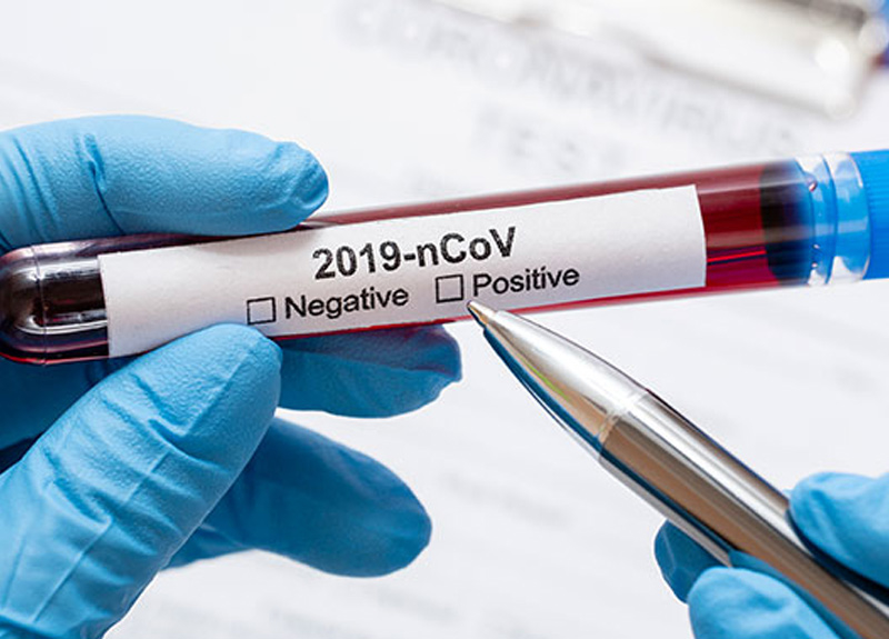 Rusya'da son 24 saatte koronavirüs salgını sebebiyle 101 kişi hayatını kaybetti