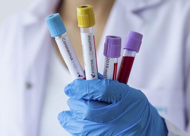 ABD'li doktor Anthony Fauci, koronavirüs aşısı için tarih verdi
