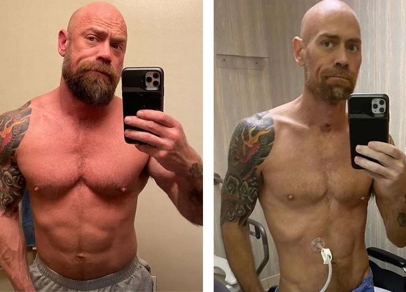 Koronavirüse yakalanıp atlatan sağlıkçı Mike Schultz'un 6 haftada yaşadığı değişim şoka uğrattı