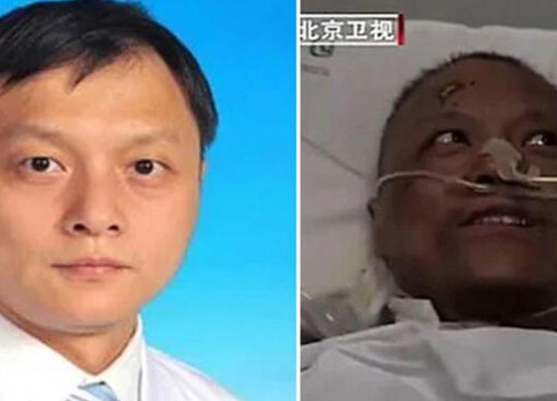 Koronavirüs nedeniyle ten rengi değişen doktor Hu Weifeng hayatını kaybetti
