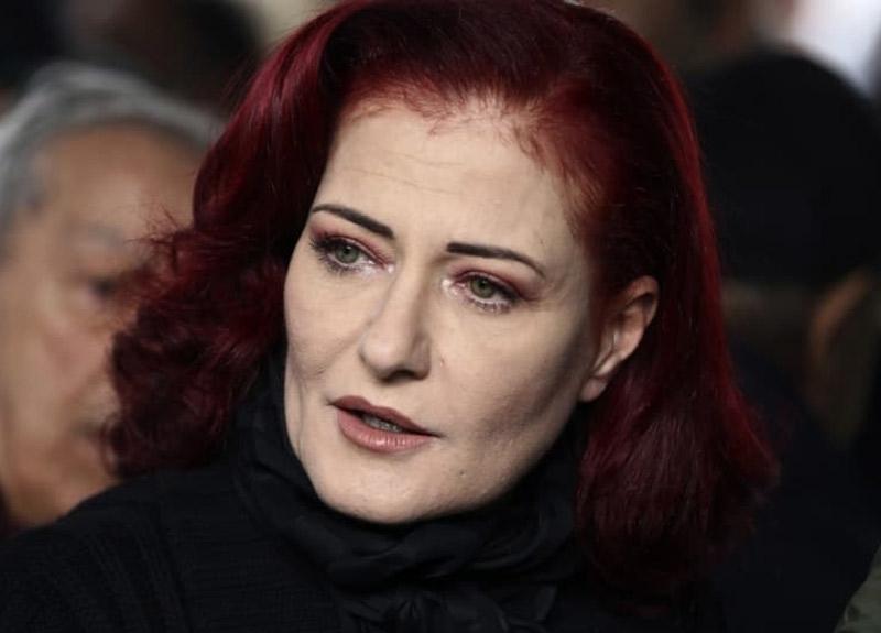 Usta şarkıcı Candan Erçetin'in bilinmeyen hastalığını anlattı! 'Dudaklarım uçukluyordu...'
