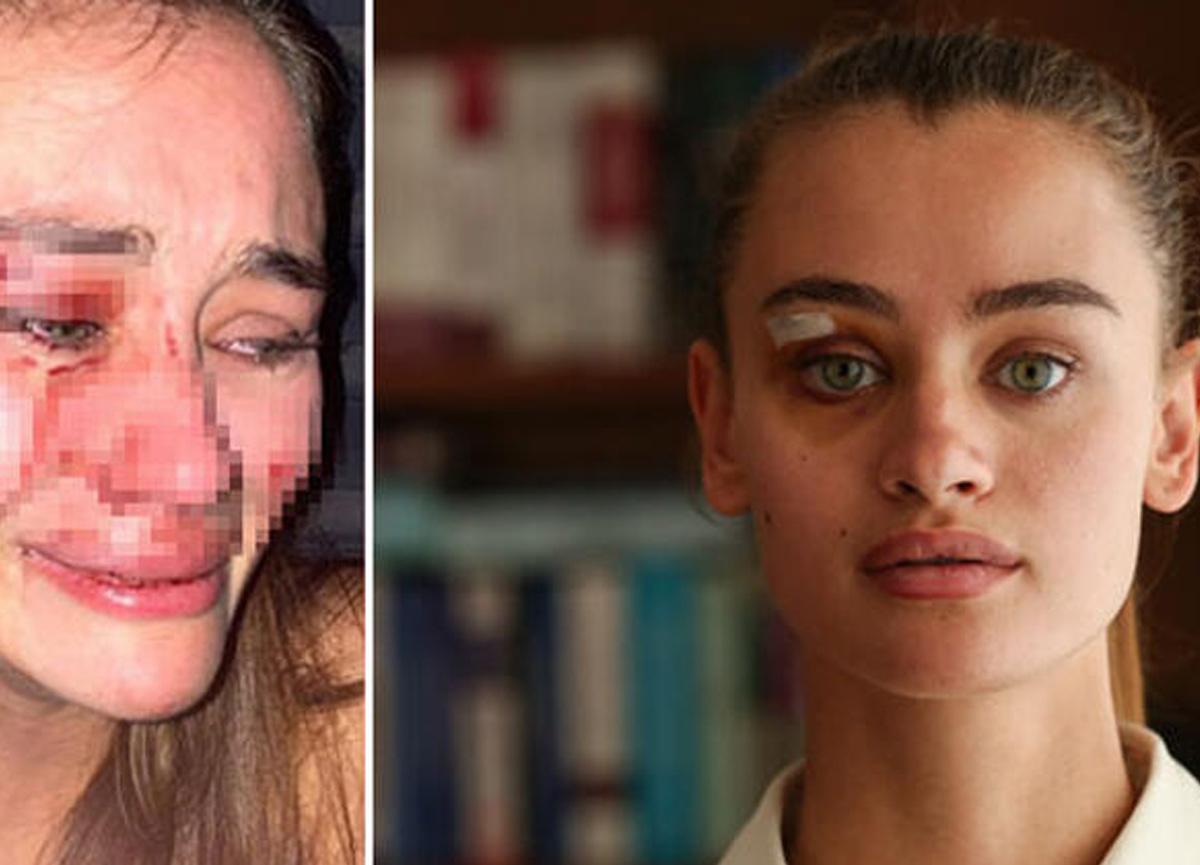 Çeşme'de dayak yiyen model Daria Kyryliuk koronavirüse yakalandı!