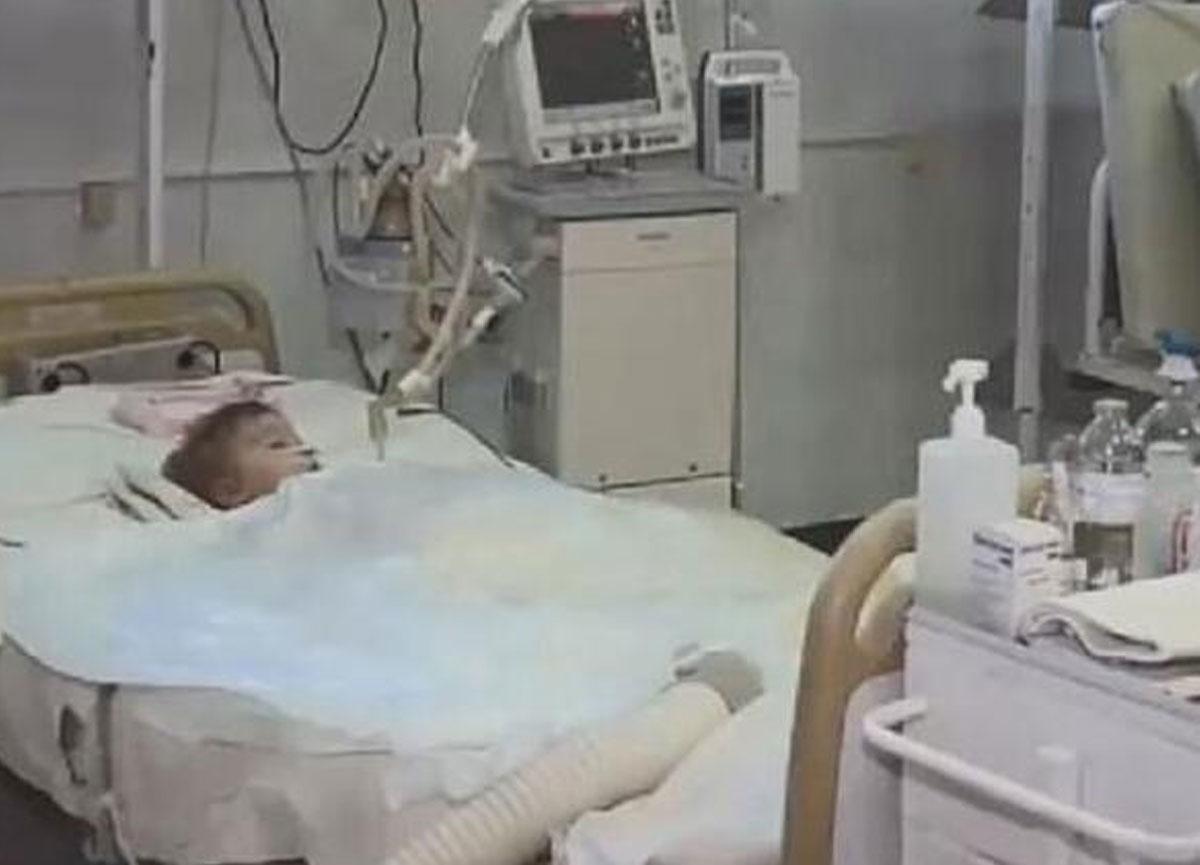 Korkunç olay! 2 yaşındaki bebek, doğum gününde köpek saldırısına uğradı