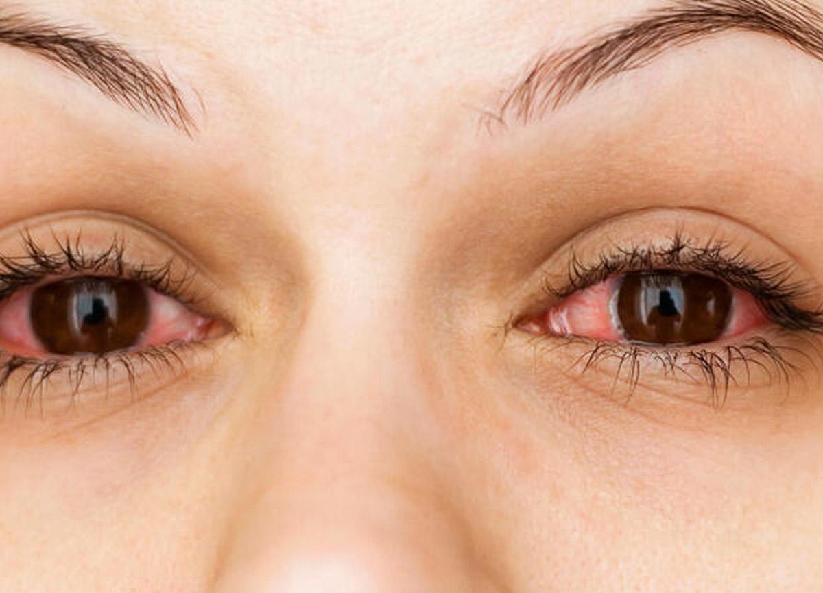Uzman isim uyardı! Koronavirüste 'kırmızı göz' belirtisi...
