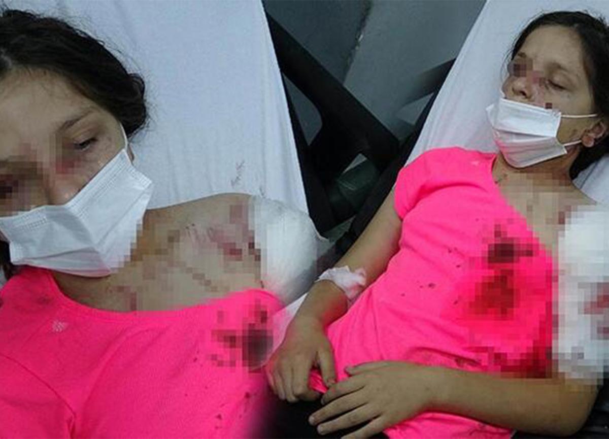 Samsun'da dehşet! 11 yaşındaki kız, pitbull saldırısına uğradı!