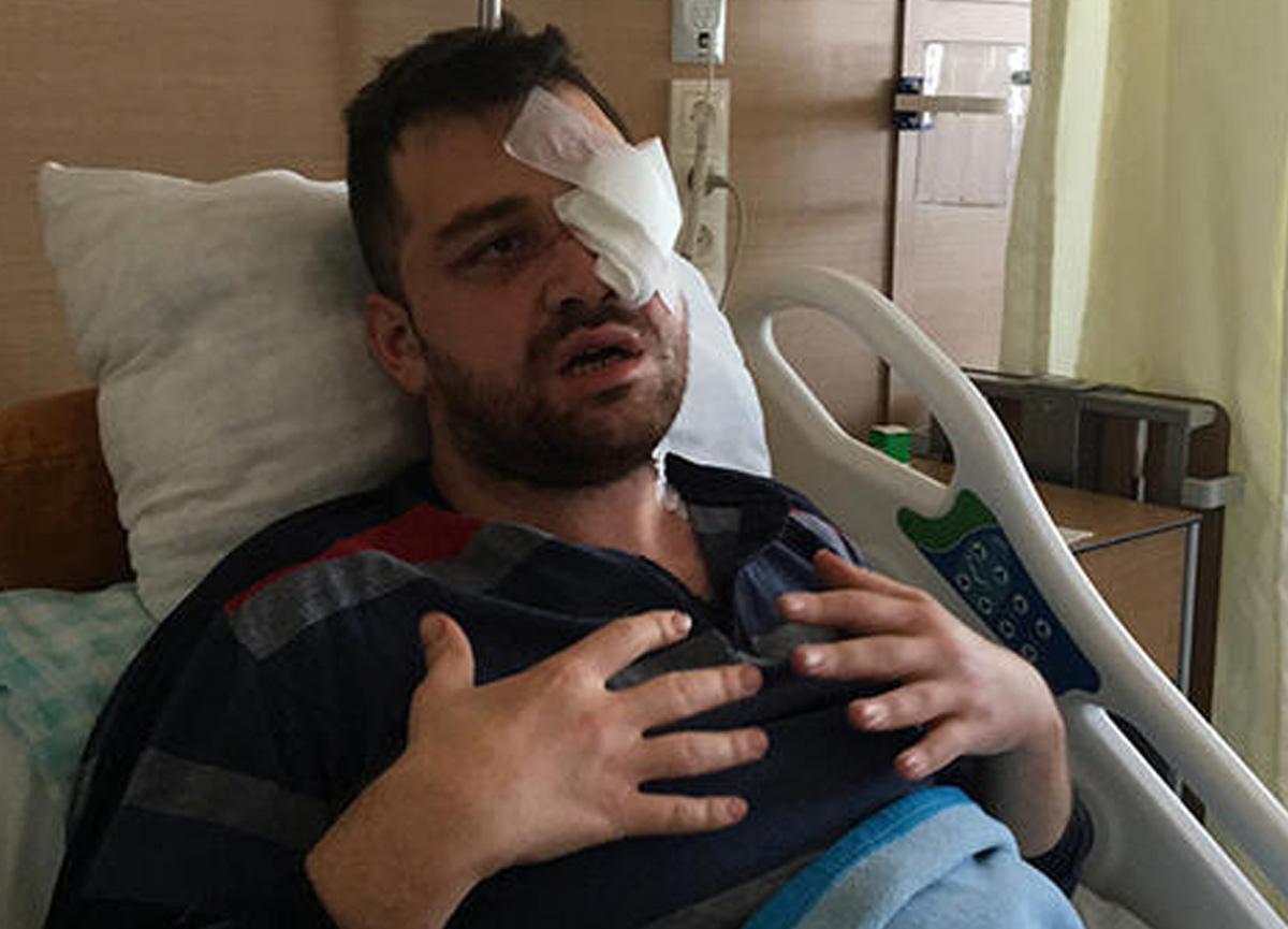 Konya'da saldırıya uğrayan avukat Asilcan Tuzcu gözünü kaybetti: 'Bıçağı gözüme soktu, dünyam karardı'