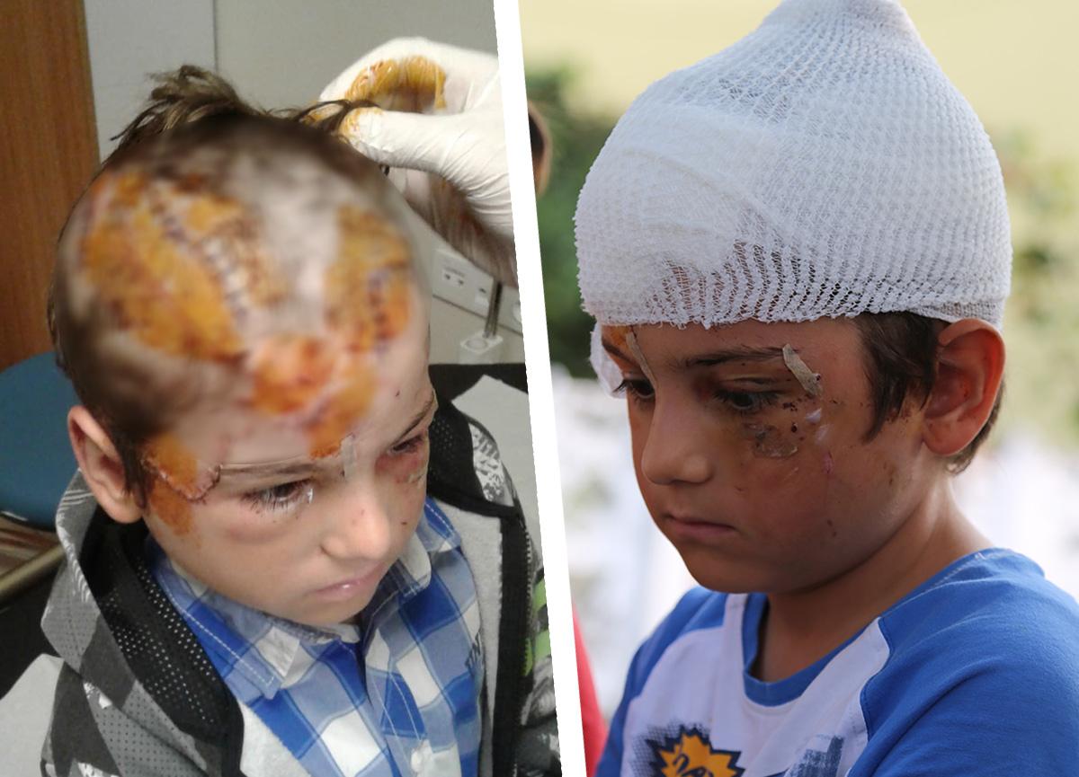Kocaeli'de kangal dehşeti: 8 yaşındaki çocuk ölümden döndü, 3 saatte 52 dikiş atıldı