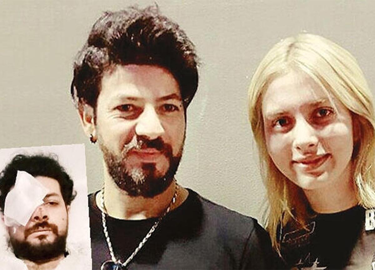 Genç şarkıcı Şahan Dinç, gözünü kaybetti!