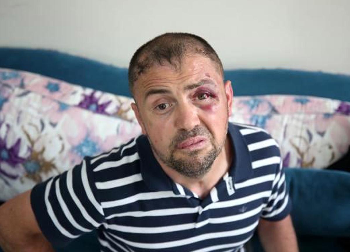 Gaziyi döven 3 sanığa 2 yıl 6'şar ay ceza verildi