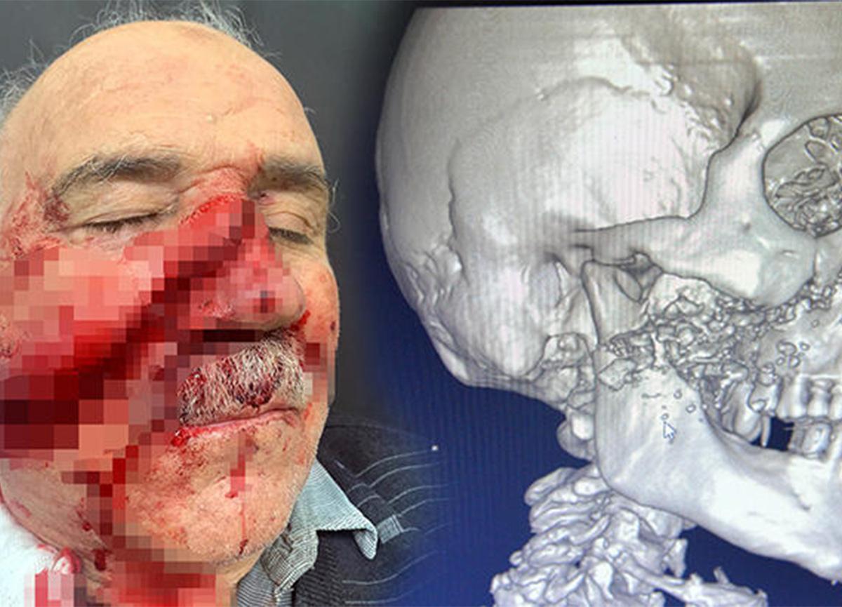Kahramanmaraş'ta feci olay! Demir keserken yüzü parçalandı