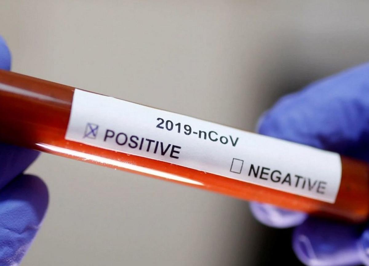 Dünyada koronavirüs günlük vaka sayısı rekoru kırıldı