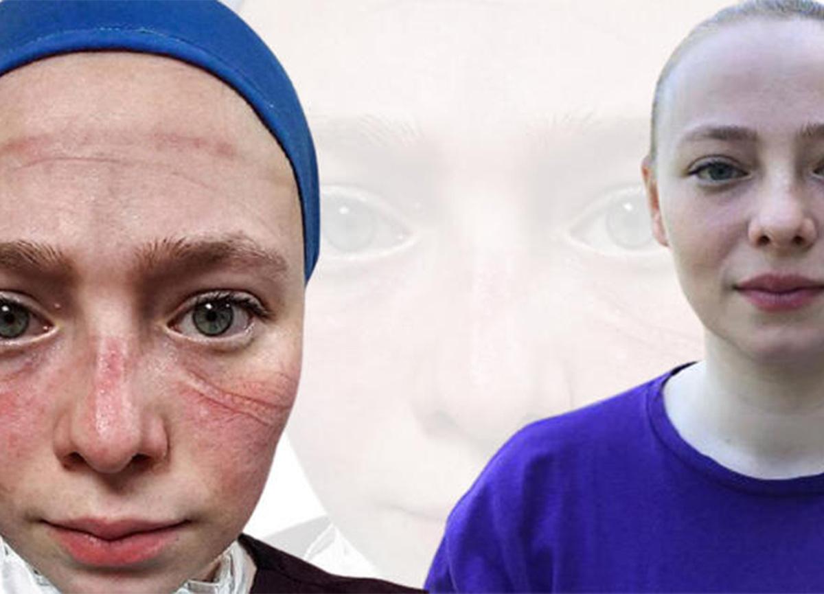 Salgınla savaşan sağlıkçıların simgesi olan hemşire Seher Altuncu konuştu!