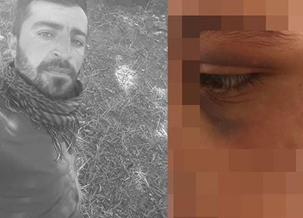 Kan donduran olay: Zincire bağlayıp 6 ay boyunca işkence yaptı, tecavüz etti