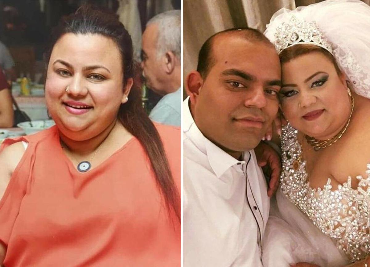 Zayıflamak istedi hayatını kaybetti: Ameliyatı yapan doktora 6 yıl hapis istemi