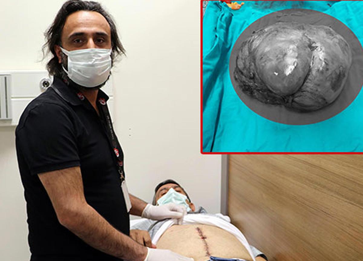 Ağrıyla gitti, karnından 6 kiloluk tümör çıkarıldı