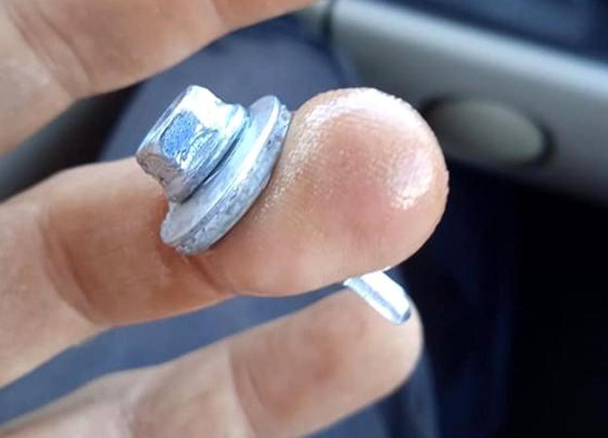 Eline saplanan vidayla hastaneye koştu, sakinliği sayesinde parmağı kurtuldu