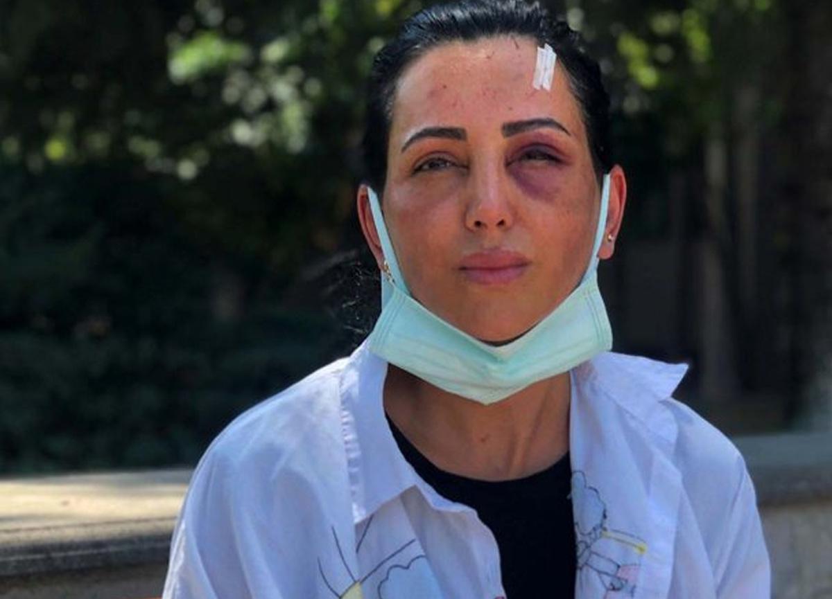 Eski sevgilisinin takside dövdüğü Habibe: 20 dakika boyunca darbetti