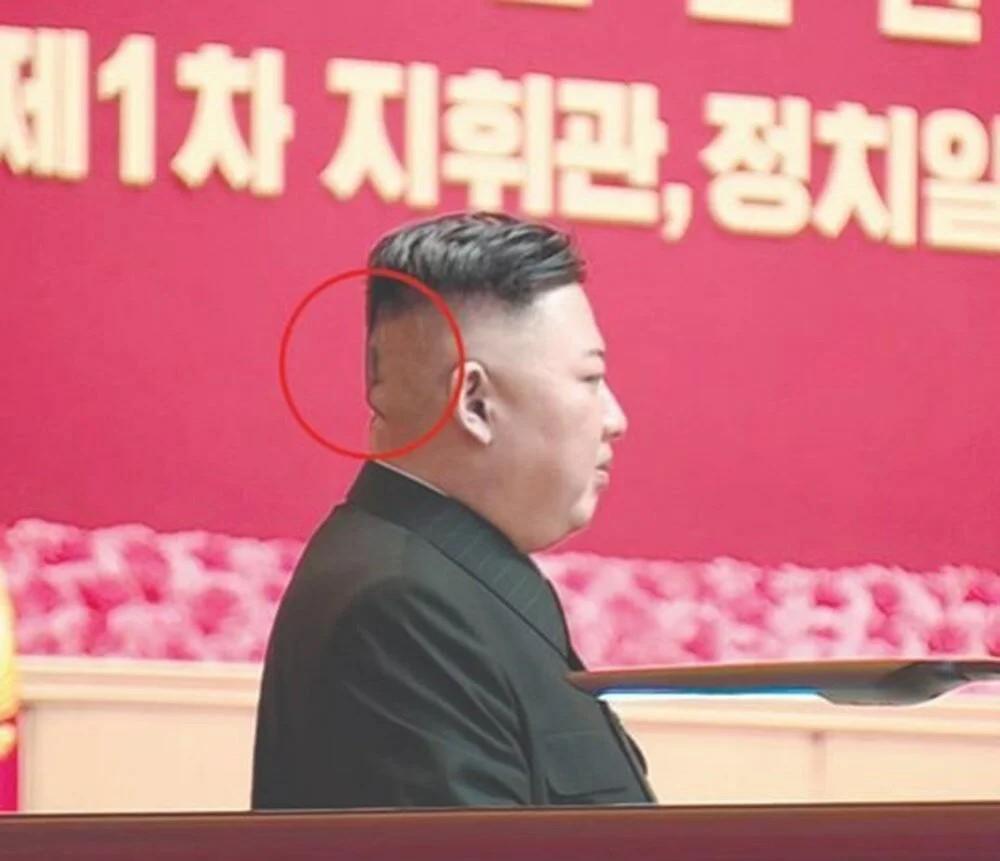 Kuzey Kore lideri Kim Jong-un başının arkasında büyük bir bandajla ortaya çıktı