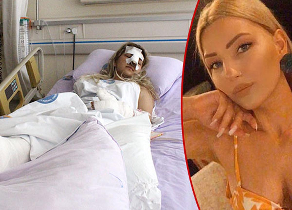 Antalya'da sevgili dehşeti: Evde beni darbetti, burnumu ısırdı, kemerle dövdü