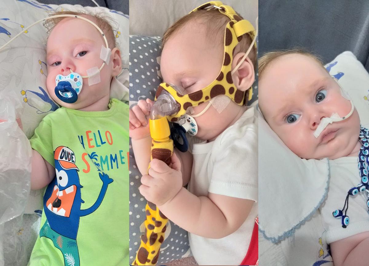 SMA Hastası Yağız Bebek Desteklerinizi Bekliyor
