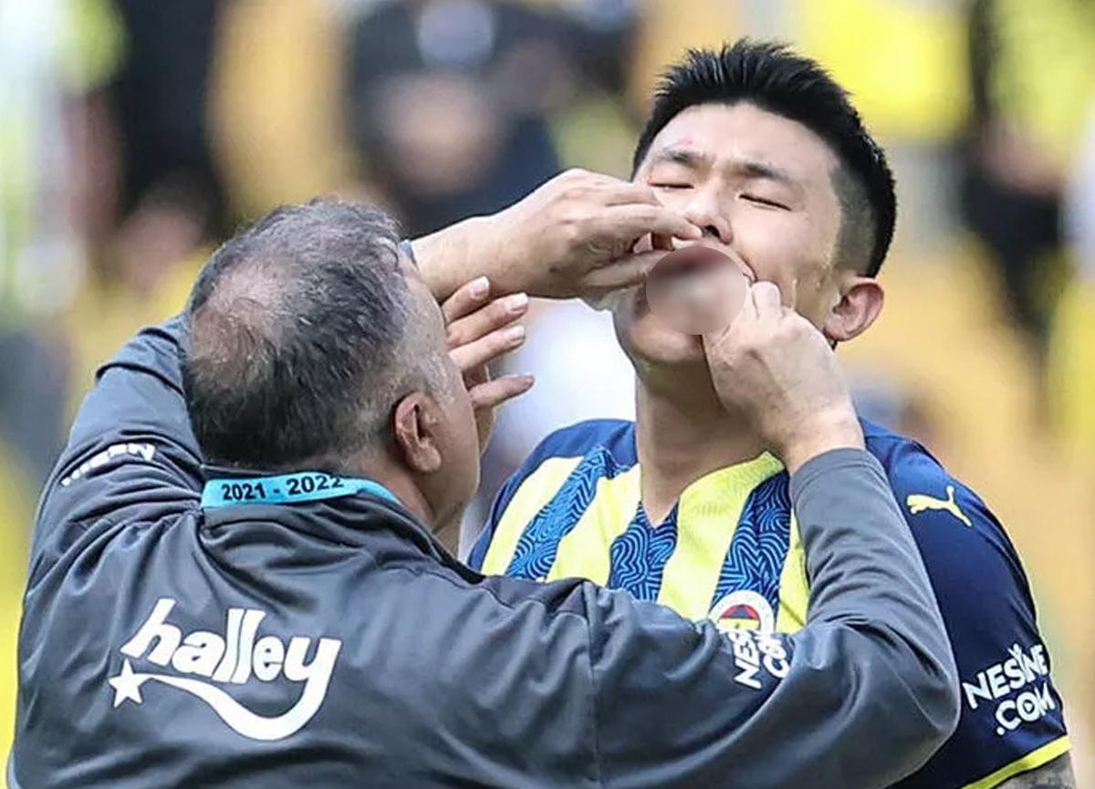 Fenerbahçeli yıldız oyuncunun dudağı patladı!