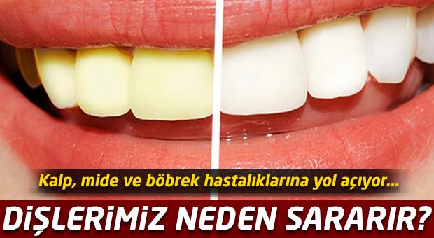 Dişlerimiz neden sararır?