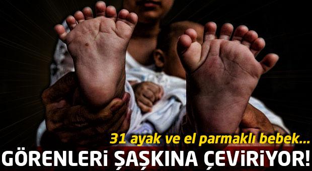 Tam 31 ayak ve el parmağıyla doğan bebek