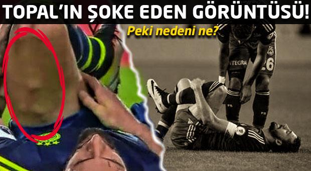 Mehmet Topal'ın bacağındaki şişlikler şoke etti!
